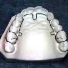 Image of Advanced Lightwire Functional (ALF) device on a ceramic model of teeth