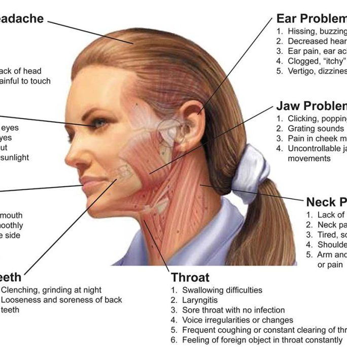 Diagram showing how TMJ issues can affect multiple parts of the head