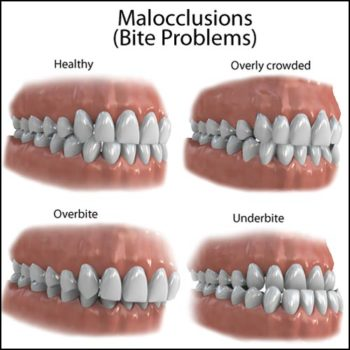 Diagram showing healthy bite pattern and three types of malocclusion