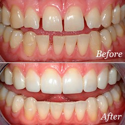 Before and after photos of teeth with bonding