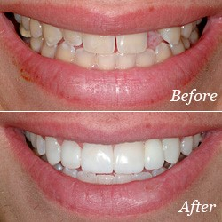 Before and after photos of teeth without and with a bridge