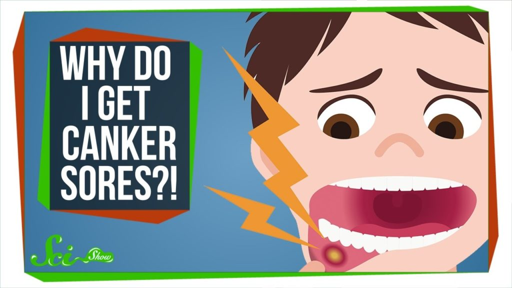 """Cartoon character asking """"Why do I get canker sores?"""""""