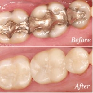 Before photo of teeth with gold crowns and after photo of teeth with tooth-colored crowns