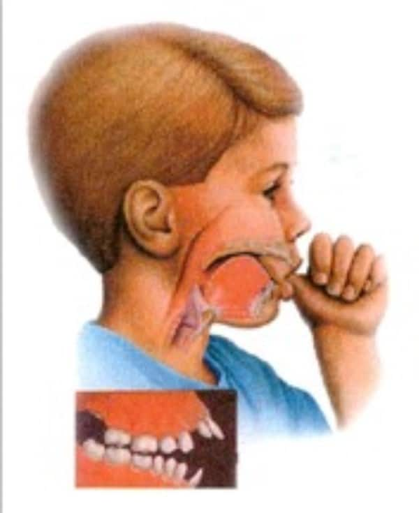 Drawing of boy sucking thumb and effects of thumb sucking on teeth