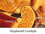displaced-condyle-2