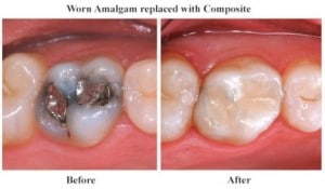 Before and after photos of teeth with worn amalgam replaced with composite material
