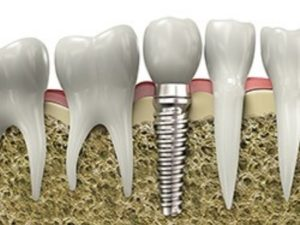 Dental implants: Computer rendered-image of screw-retained implant among nearby natural teeth