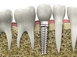Computer rendering of screw-retained implant