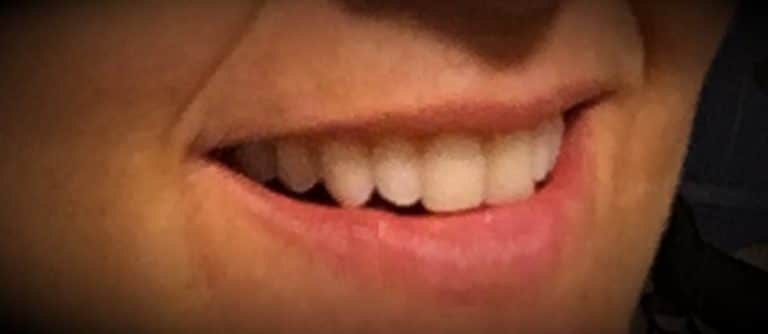 Patient's beautiful smile at Winchester Dental