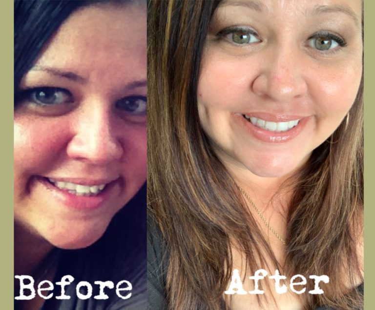 Before and after photos of our patient Marki's Invisalign® success story