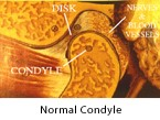 normal-condyle-2