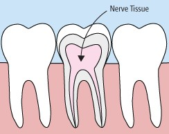 Drawing of teeth needing root canal treatment