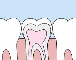 Drawing showing teeth ready for dental sealants