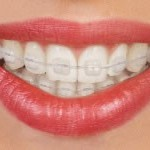 traditional-braces-ceramic