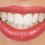 traditional-braces-clear-aligners
