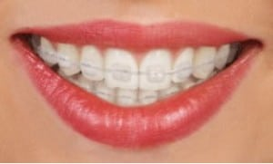 Closeup of mouth with traditional ceramic braces on teeth