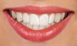 Closeup of mouth with clear aligners on teeth
