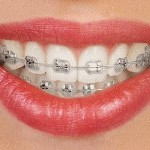 traditional-braces-metal
