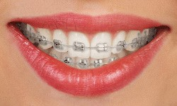 Closeup of mouth with traditional metal braces on teeth