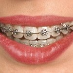 traditional-braces-self-ligating