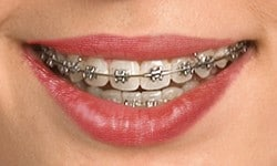 Closeup of mouth with self-ligating traditional metal braces on teeth
