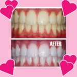 Before and after teeth whitening photos in Valentine's Day frame
