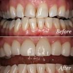 veneers-before-after