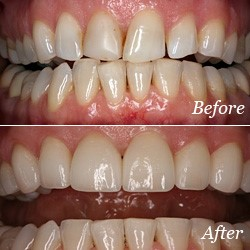 Before and after photos of teeth without and with dental veneers