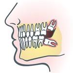 wisdom-teeth-image