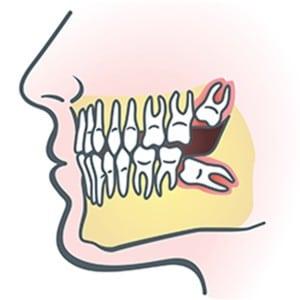 Drawing of impacted wisdom teeth